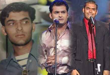 kapil sharma young hair transplant
